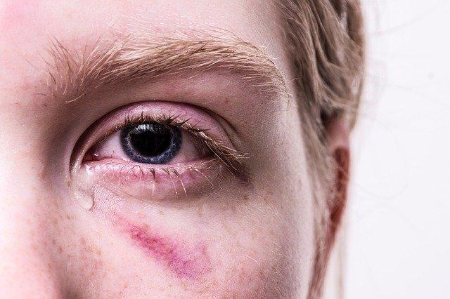 dlaczego oczy łzawią